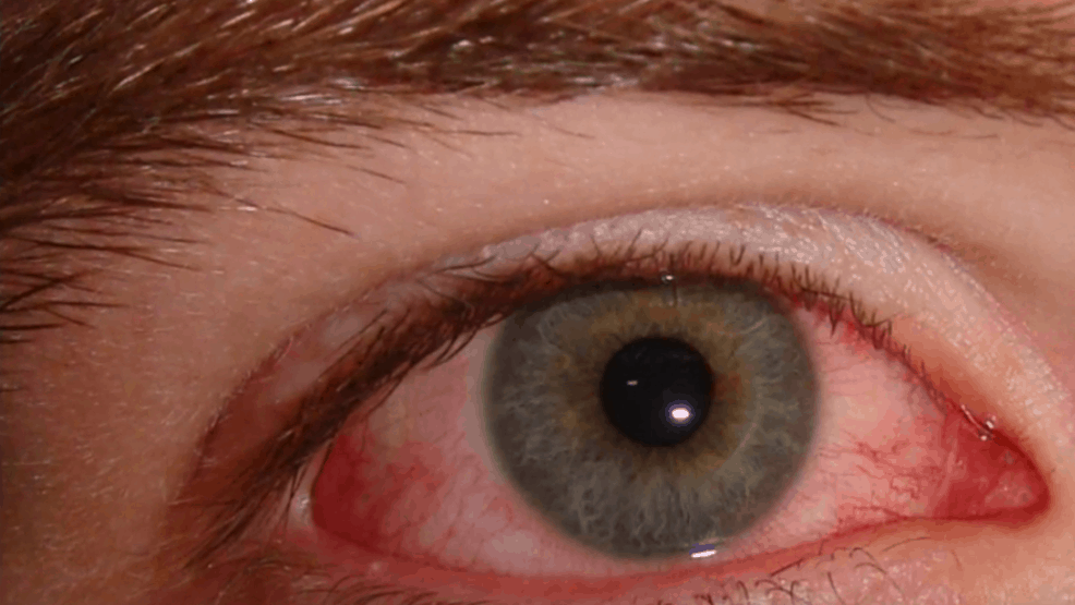 Mount Sinai Study Finds COVID-19 Can Infect the Eye