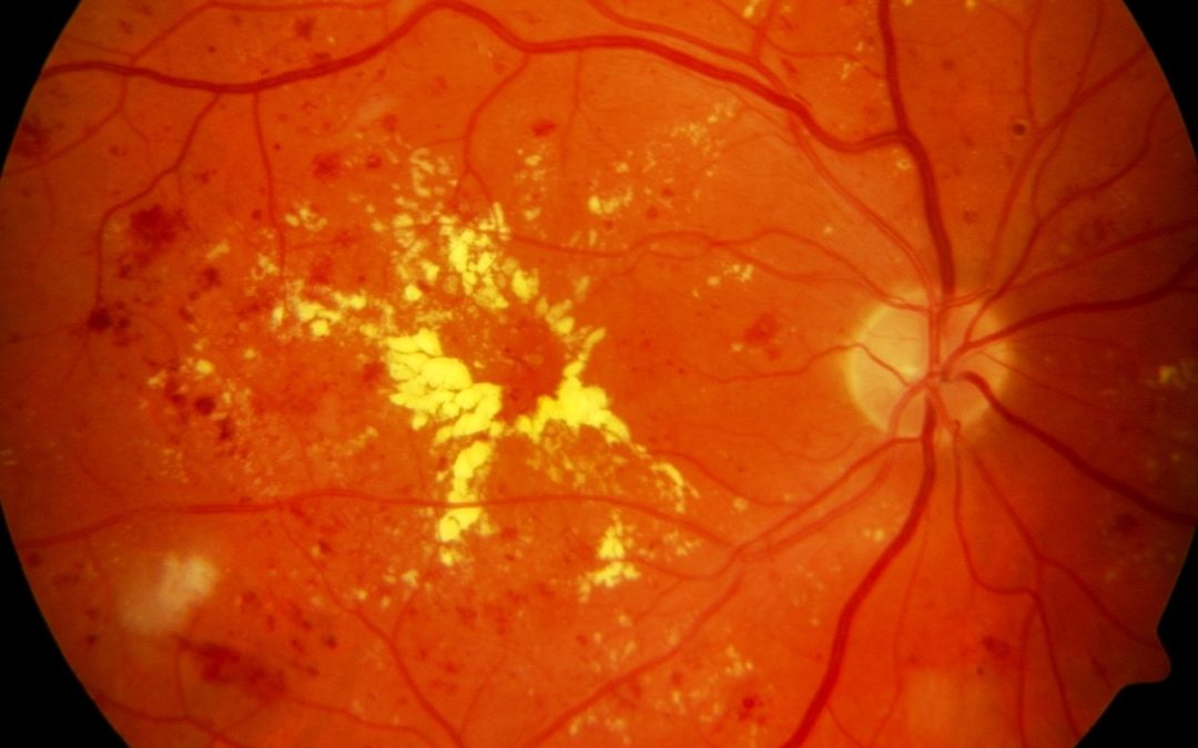 November Is Diabetes-Related Eye Disease Month